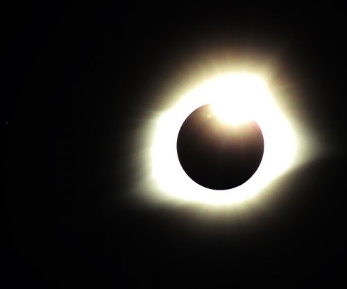 Doctors offer advice to eclipse viewers who may have damaged their vision