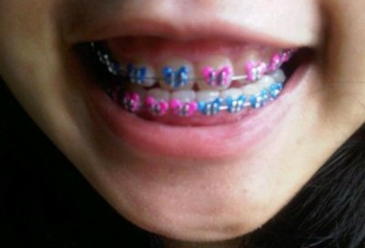 Why the fake braces trend may be dangerous for users UPIcom
