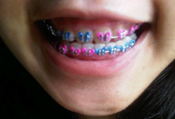 Diy braces for sale do it your self diy affordable diy fashion braces home facebook source why solutioingenieria Images