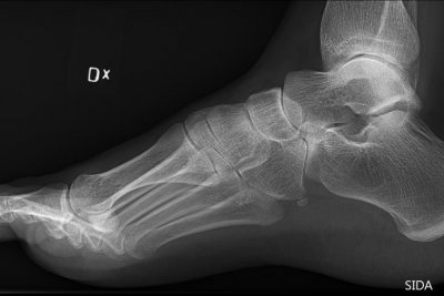 Long-overlooked arch is key to function, evolution of human foot