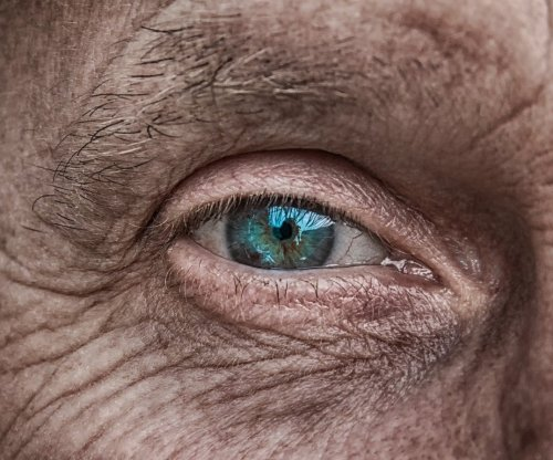 HIV-positive adults show early signs of aging, even after antiretroviral therapy