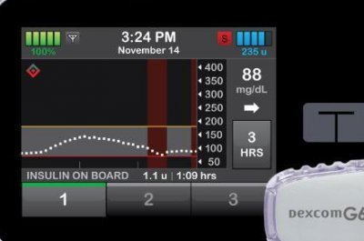 FDA approves first customizable insulin pump