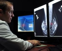 Obesity increases odds for breast cancer return in survivors, study says