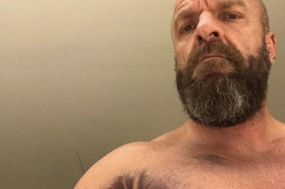 Wrestler Triple H shows off brutal injury