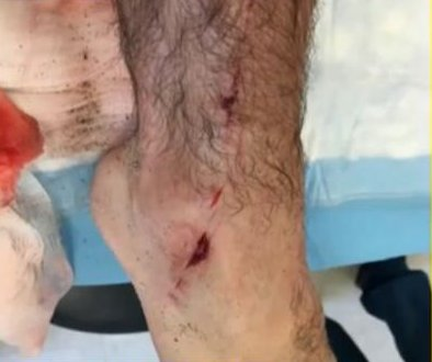 Florida student punches shark to escape attack