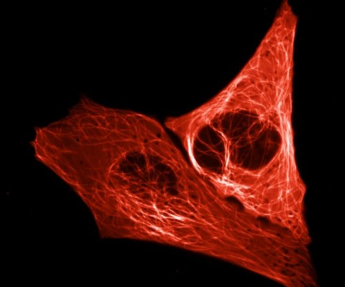 Scientists develop bright red fluorescent protein in the lab