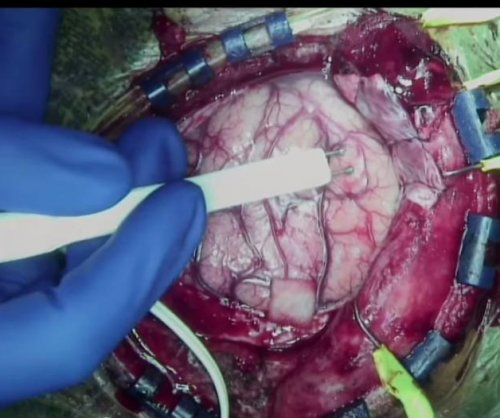 MIT student records video of his own brain surgery