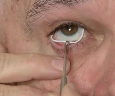 Silicone ring may be superior to drops for glaucoma patients