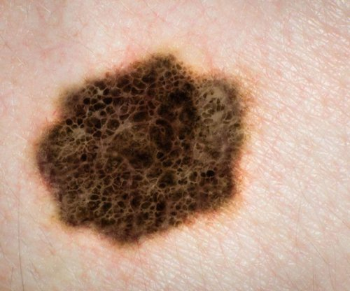 Study: Surgery may be best treatment after melanoma spreads to abdomen