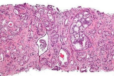 Surgery, radiation combo improves prostate cancer survival