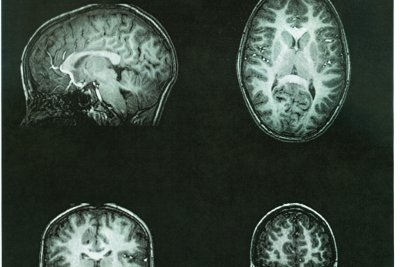 High blood pressure in 30s, 40s may increase dementia risk later in life