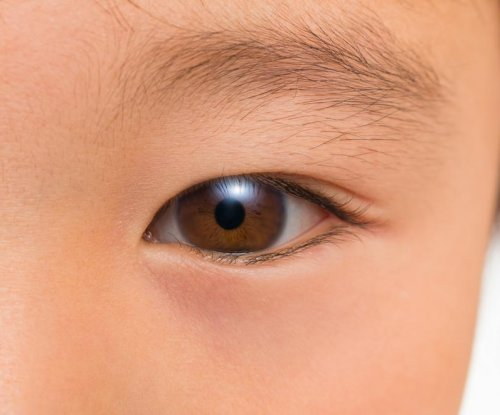 Simple eye test may detect autism in children sooner, researchers say