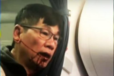 United Airlines settles with bloodied passenger, overhauls policies