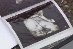 Ultrasound photos left in leased car returned to parents 2 years later