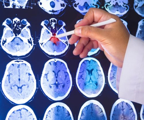 Breakthrough allows Parkinson's progression to be measured