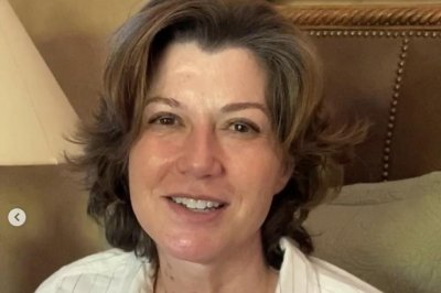 Amy Grant shows heart surgery scar, reflects on 'miraculous' recovery