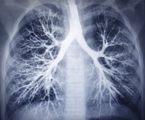 Study: Genetic indicators help determine COPD risk