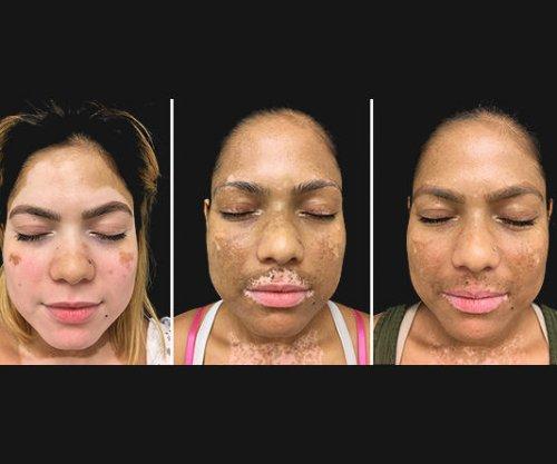 Xeljanz, light therapy combination could be 'breakthrough' vitiligo treatment