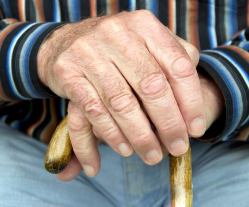 New tool to treat rheumatoid arthritis discovered