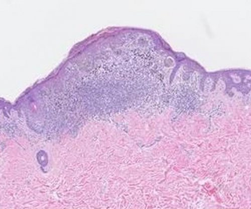 New melanoma staging guidelines to improve consistency, accuracy of diagnoses