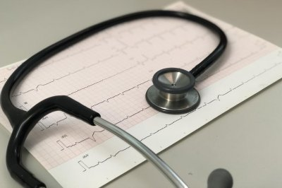 Artificial intelligence uses electrocardiograms to predict arrhythmia