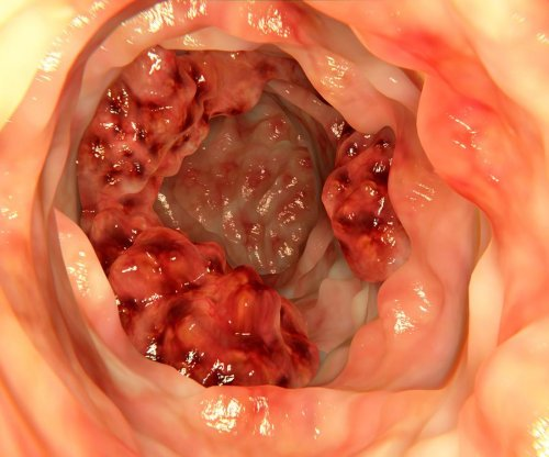 Triple-therapy patch may treat, prevent recurrence of colon cancer