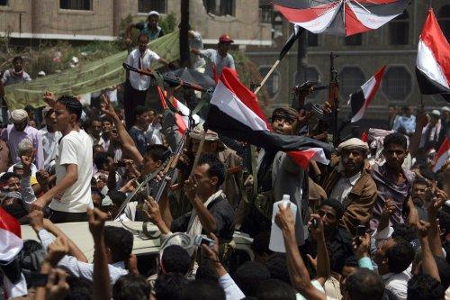 Yemen's Saleh burned on 40% of body