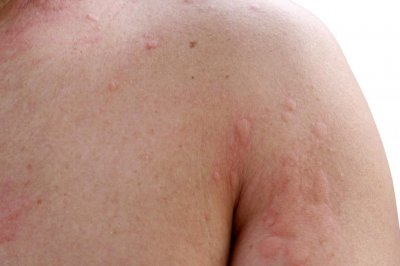 Self-reported penicillin allergy could be chronic hives - UPI.com