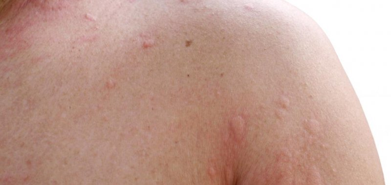 Self-reported penicillin allergy could be chronic hives