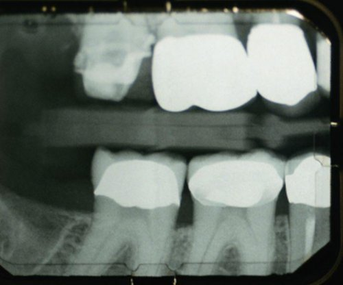 Can teeth repair themselves without fillings?