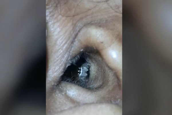 Doctors find live spider in woman's ear