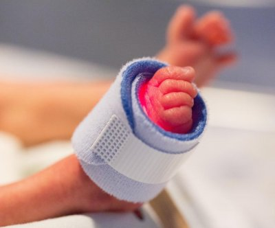 Umbilical cord 'milking' may cause brain bleeding in preemies