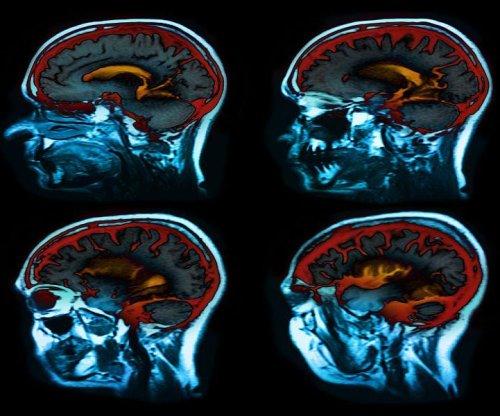 Parkinson's rates rising among American men