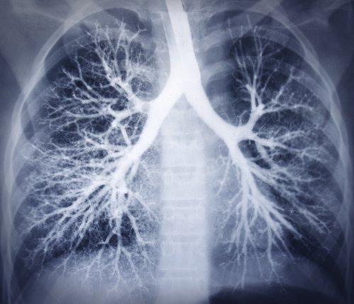 Lung diseases increased 18% worldwide in last 30 years