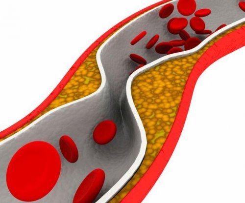 Many young adults with high cholesterol not on statins
