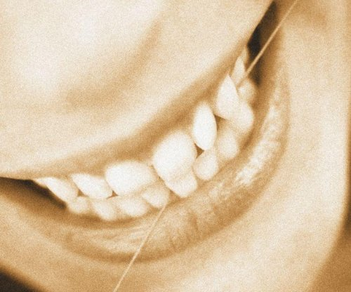 Study ties gum disease bacteria to esophageal cancer