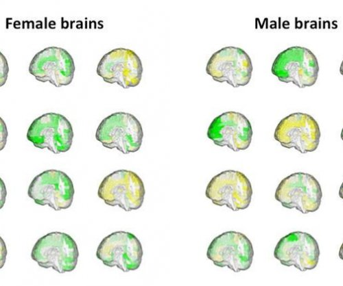 Study: No sex differences in human brain