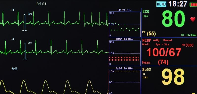 Could vital signs be monitored wirelessly? - UPI com