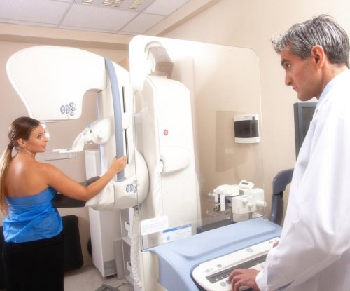Mammogram guidelines scale back screenings for younger women