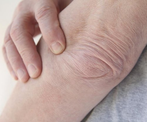 FDA: Severe joint pain possible with DPP-4 diabetes drugs