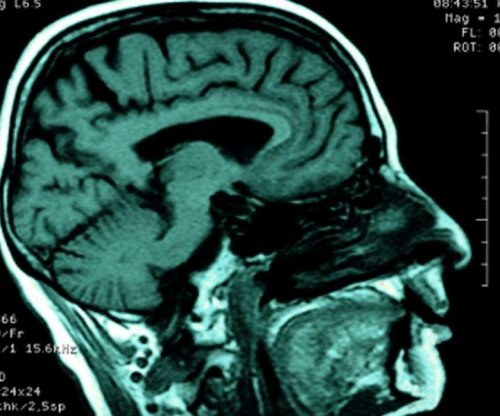 Brain scans may improve dementia diagnosis, treatment