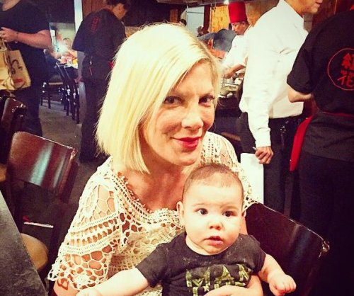 Tori Spelling sues Benihana restaurant after burn