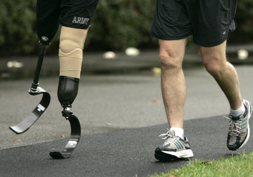New cause of osteoarthritis discovered