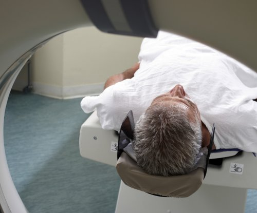 Brain age could help predict risk of early death