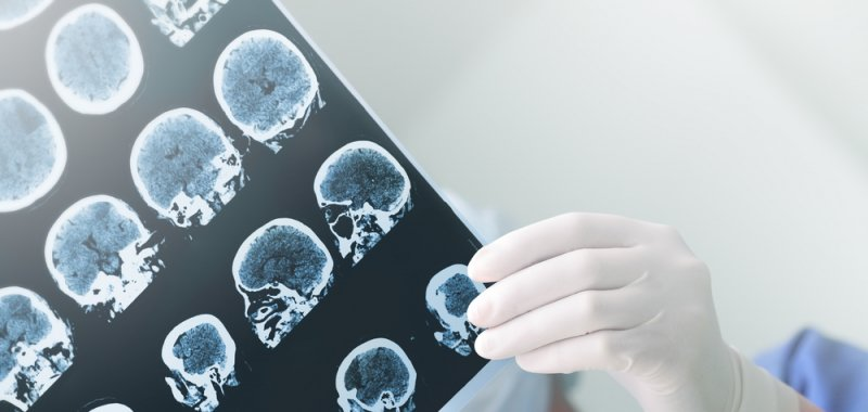 Stanford researchers halt brain cancer growth with absence