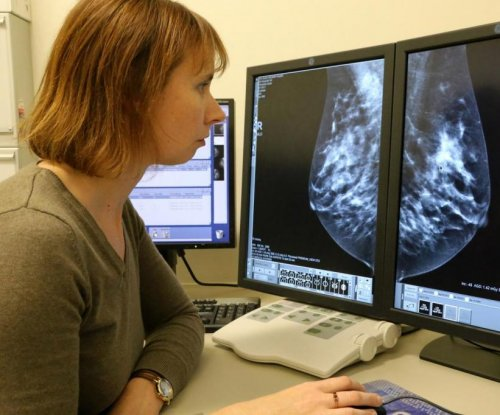 Breast density research making strides in cancer prevention