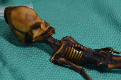 Study: Chilean 'alien' was a human with rare bone anomalies