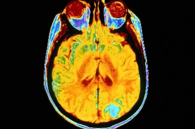 Cocaine cut with anti-worming drug can cause brain damage