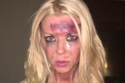 Tara Reid promotes anti-bullying movie with bruised photo