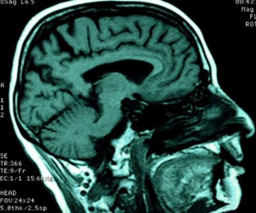 Liquefied brain tissue post-stroke could harm healthy parts: study